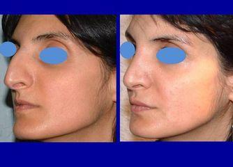 chirurgia naso prima e dopo