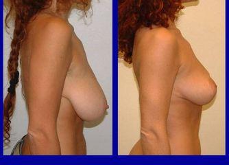 Riduzione seno prima e dopo