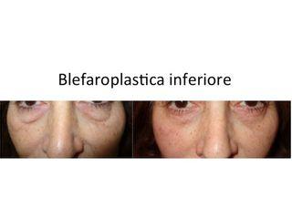 Blefaroplastica inferiore