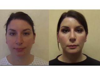 Rinoplastica + Bichectomia + Liposuzione collo + Protesi mentoniera