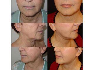 Lifting collo - Dr Ernesto Maria Buccheri