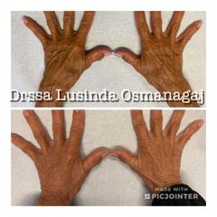 Ringiovanimento - Dott.ssa Lusinda Osmanagaj