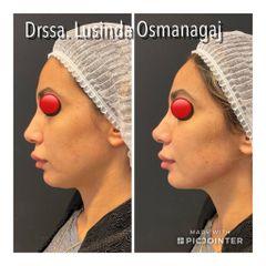 Rinofiller - Dott.ssa Lusinda Osmanagaj