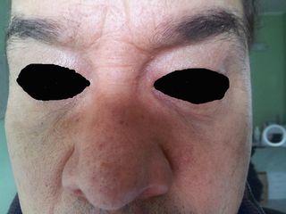 Occhiaie dopo 1 settimana