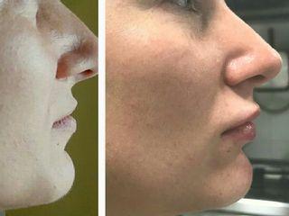 Labbra prima e dopo