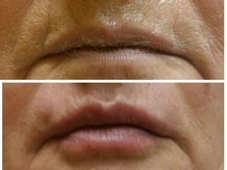 Correzione labbra prima e dopo