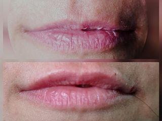 Filler labiale prima e dopo