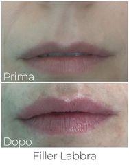 Filler labbra - Dott. Marco Di Clemente