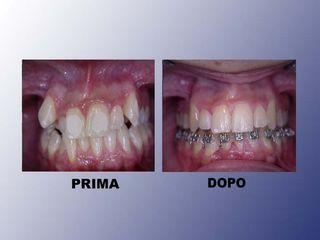 Ortodonzia prima e dopo