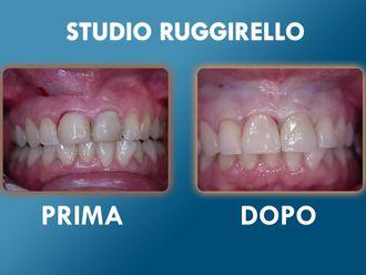 Ortodonzia-752893