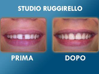 Ortodonzia-752894