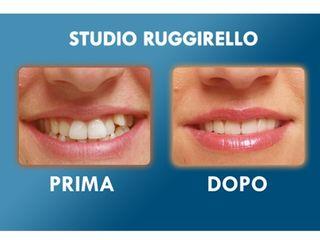 Estetica dentale prima e dopo