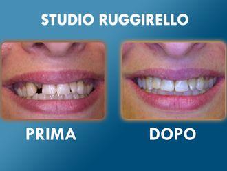 Dentisti-752897