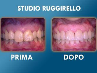 Dentisti-752908