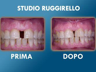 Dentisti-752909