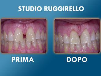Dentisti-752910