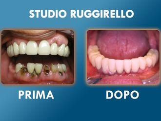 Dentisti-752916