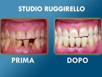 Dentisti-752917