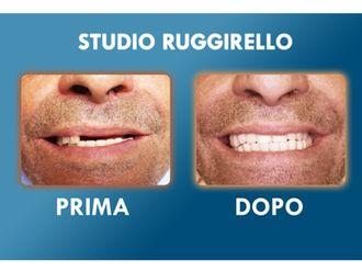 Dentisti-752919