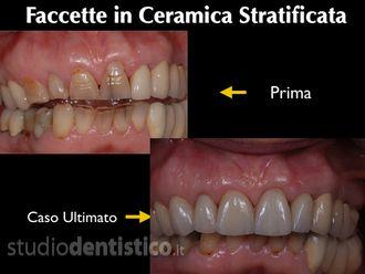 Dentisti-759486