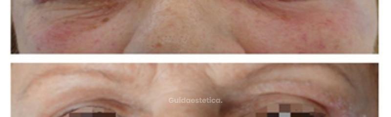 Blefaroplastica superiore non chirurgica. Dopo una seduta