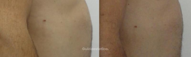 Carbossiterapia dopo 2 trattamenti