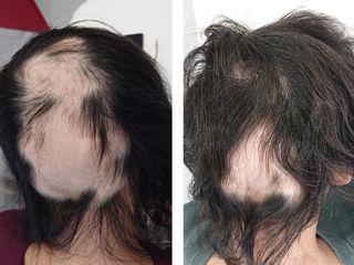 pixlr risultati su alopecia