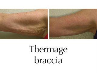 thermage braccia prima e dopo