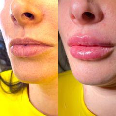 Filler labbra - Laser Clinic Milano