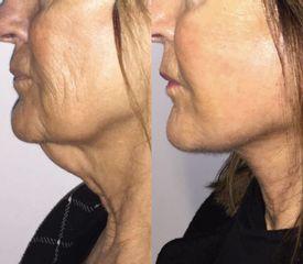 Lifting viso - Laser Clinic Milano