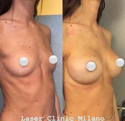 Mastoplastica additiva - Laser Clinic Milano