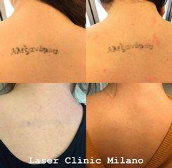 Rimozione tatuaggi - Laser Clinic Milano