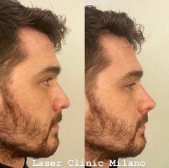 Rinofiller - Laser Clinic Milano