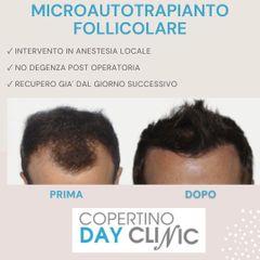 Trapianto capelli - Dott. Luigi Nestola