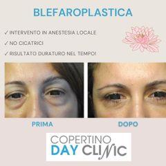 Blefaroplastica - Dott. Luigi Nestola