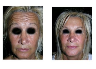 Botox pre e post