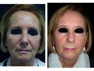 Laserterapia-749682