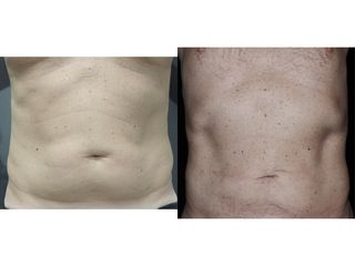 Liposuzione - Dr. Pier Luigi Gibelli