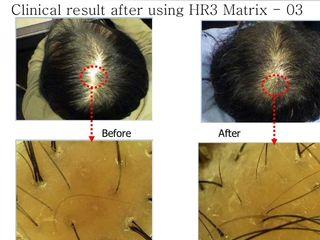 biorivitalizzazione cuoio capelluto prima dopo