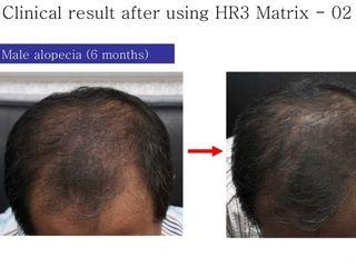 alopecia prima dopo