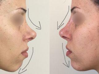 Filler naso e mento prima dopo
