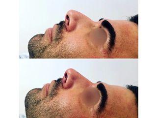 Rinofiller prima e dopo
