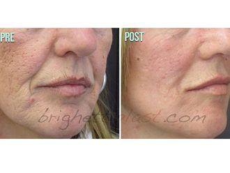 Laserterapia-751251