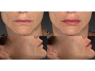 Filler labbra - Skin Center