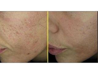 Acne - Skin Center