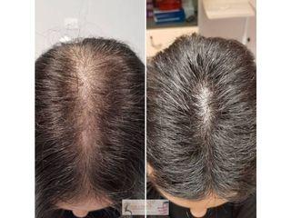 Trapianto capelli - Skin Center