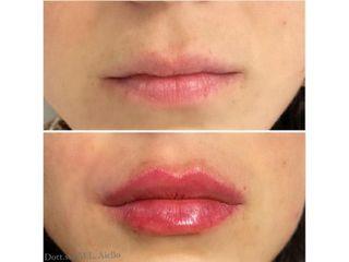 Filler labbra - Dott.ssa Maria Luigia Aiello