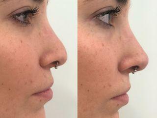 Rimodellamento punta naso prima dopo