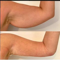 Liposuzione - Dr. Raoul Novelli