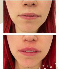 Filler labbra - Dr. Raoul Novelli